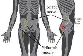 Sciatica - Ultralign Spinal Care in Gandhinagar and Ahmedabad